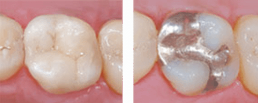 Tooth with a metal filling next to a tooth with a metal-free, composite filling.