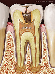 Tooth diagram outlining how decay and infection cause root canal problems.
