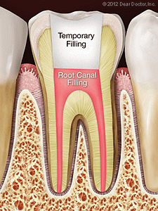 Tooth diagram showing a root canal filling and temporary filling from a root canal procedure.
