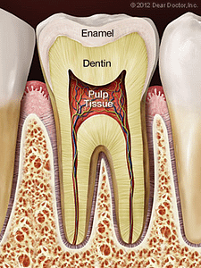 Root canal tooth diagram showing enamel, dentin, and pulp tissue.