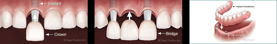Diagrams of dental implants, dental crowns, dental bridges, and implant-supported overdentures.