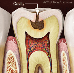 Tooth diagram showing a cavity in need of a composite filling.