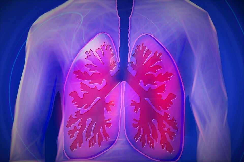 Lung Cancer from Agent Orange Exposure