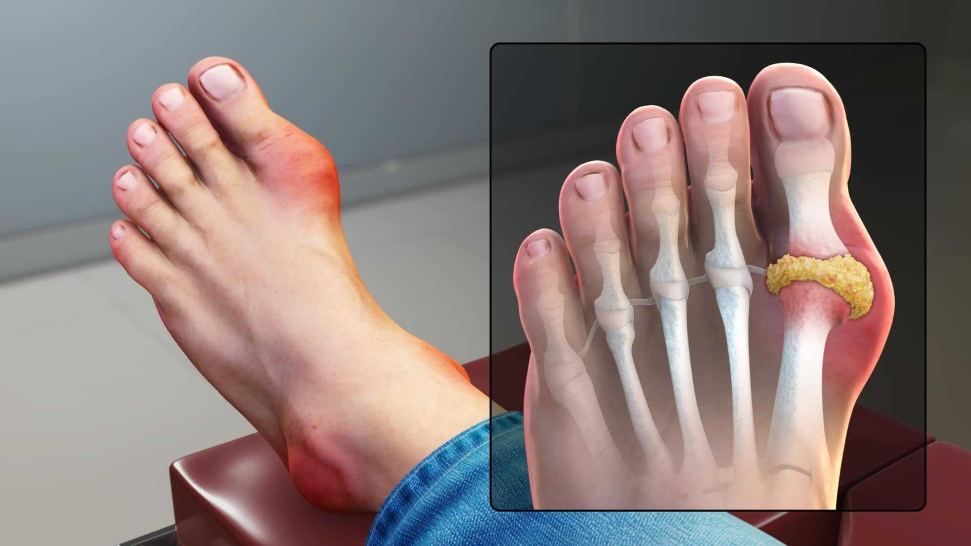 VA Disability for Gout
