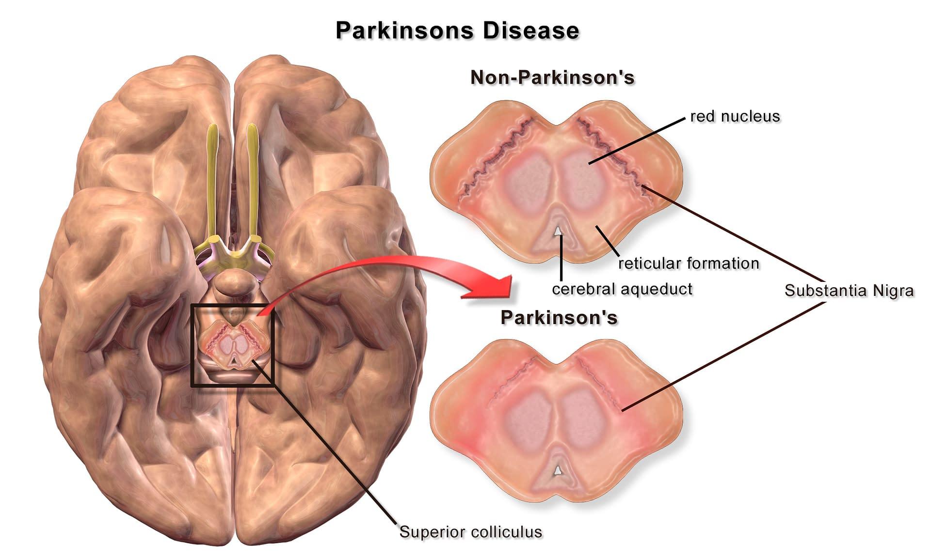 Parkinson's Disease from Agent Orange Exposure