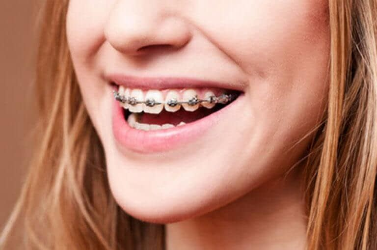 Why You Should Wear Your Retainer After Braces.