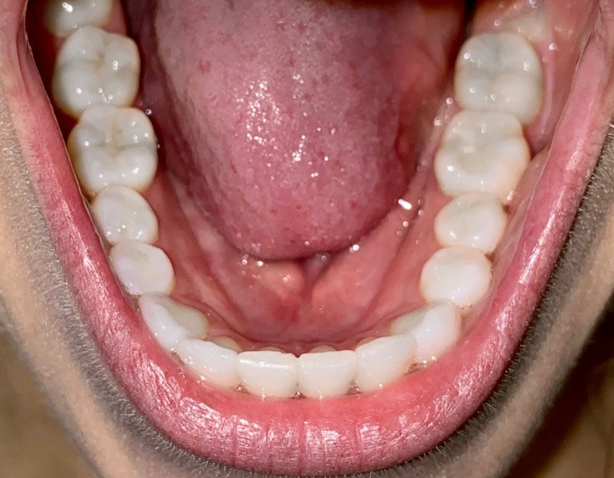 bottom of mouth
