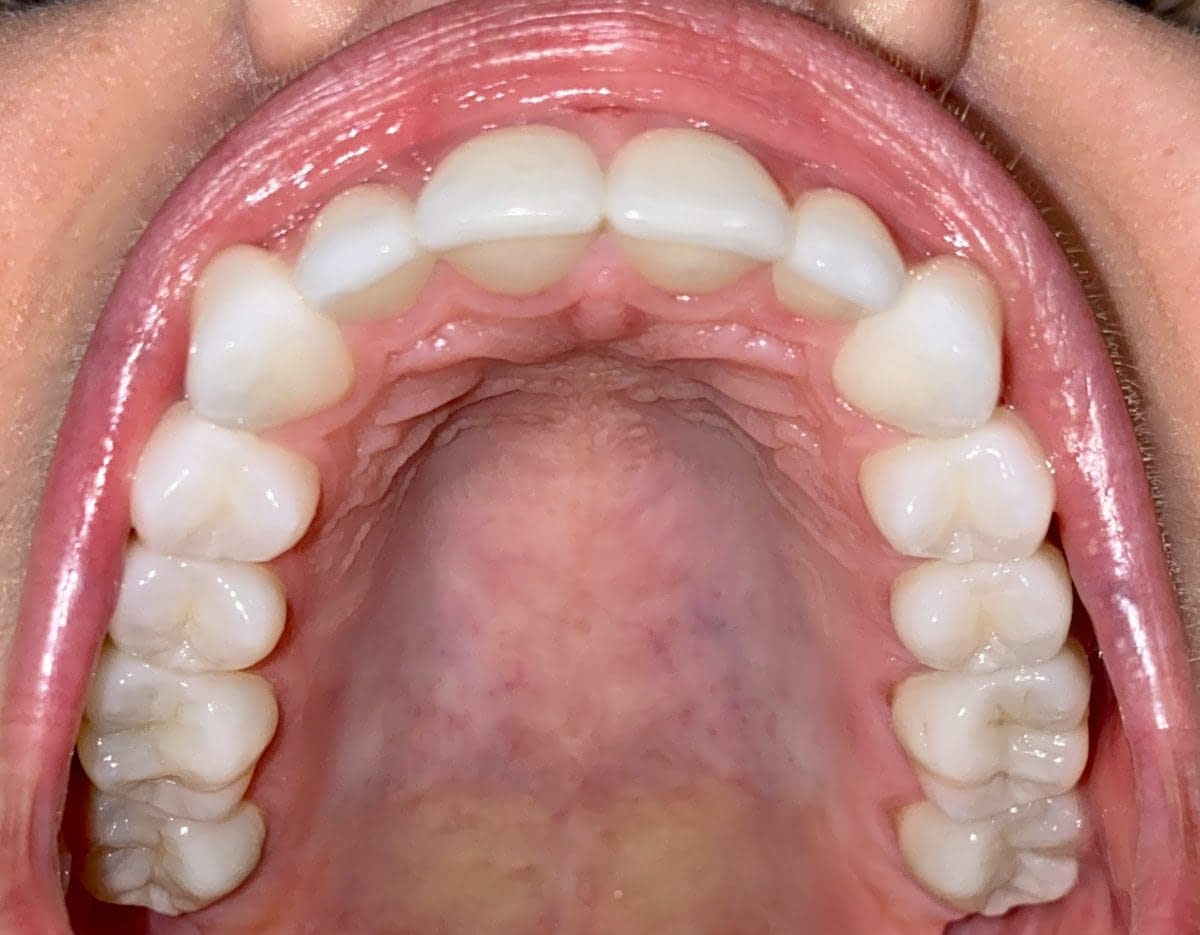 roof of mouth