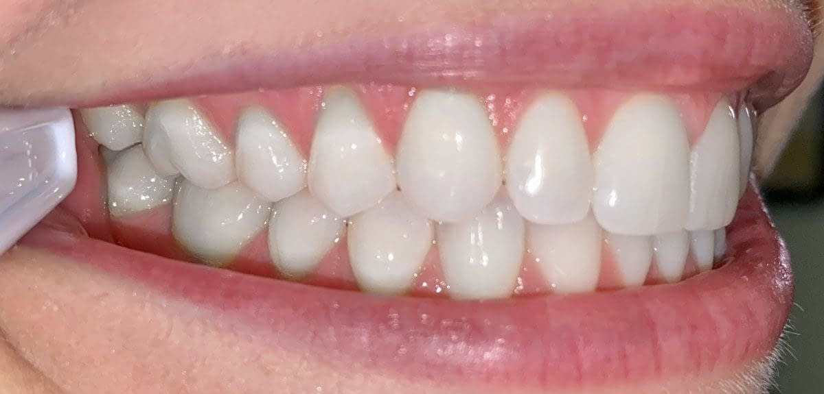 left side smile using spoons