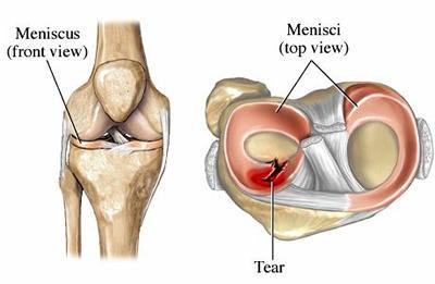 Torn Meniscus in Knee