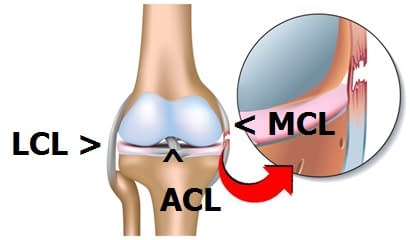 MCL-Injury-Recovery-jpeg