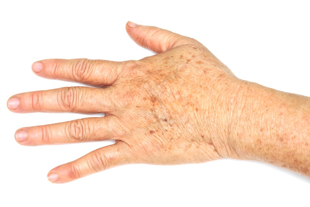 Are my dark spots associated with my Arthritis?