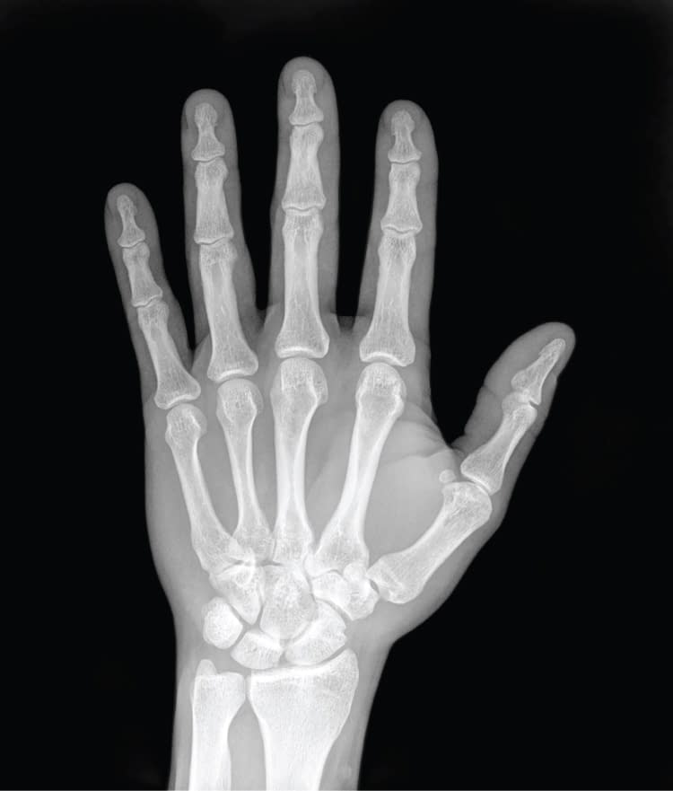 Ask An Orthopedist | Fractured Finger