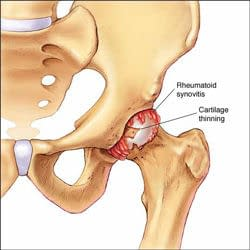 Would certain exercises wear out my new hip?