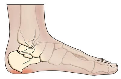 Can bone spurs grow back?
